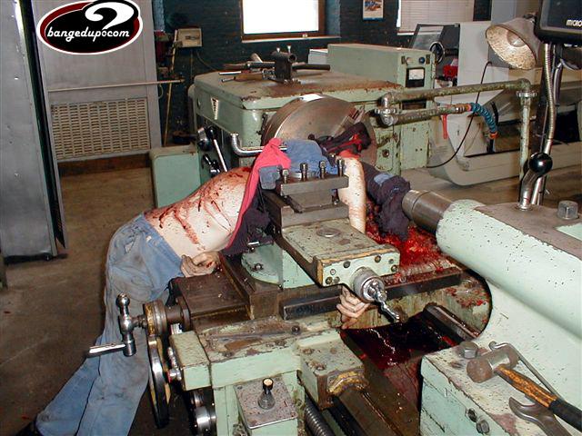 Machine Shop Injuries