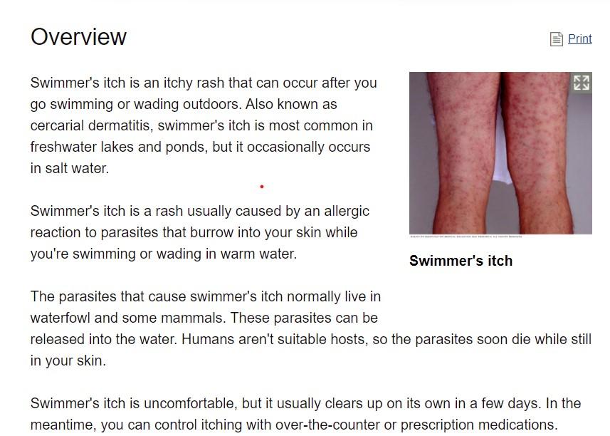 swim itch.jpg